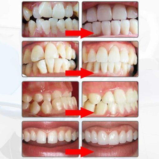 Alignement dentaire correction