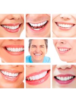 Des dents alignés et un beau sourire